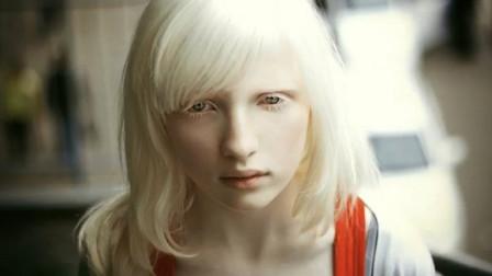 世界最漂亮的白化病女孩,整个人像一堆白雪,还成为了著名模特!