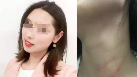 巴中26岁女教师坠亡不予立案父亲申请复议 警方: 决定维持