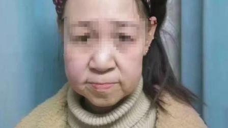 辽宁15岁少女面如60岁老太 被中年人喊大姐