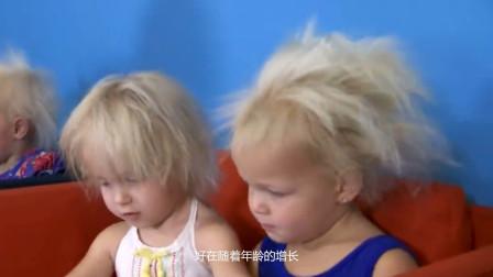 双胞胎姐妹身患怪病,每次梳头都疼痛难忍,爱因斯坦曾患此病!