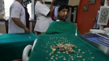 印度男孩嘴里长出肿瘤,里面有526颗牙齿,医生都难以置信