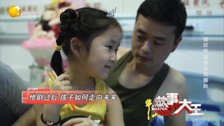 故事大王:可怜的双胞胎姐妹被菜刀砍断双脚,因感染再次手术遭罪