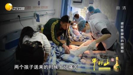 故事大王:5岁双胞胎姐妹后脚跟被砍两三刀,跟腱神经血管全断了
