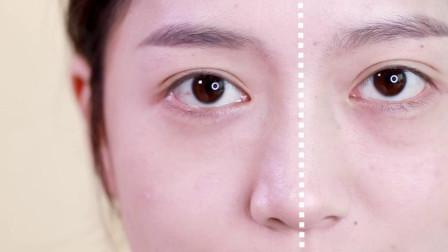 正确认识眼下显老区域 秒变童颜