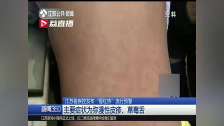 """江苏疾控发布""""猩红热""""流行预警 主要症状为弥漫性皮疹、草莓舌"""