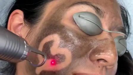 据说这是最新的一款美白仪器,可以去除脸部的黑色素,看着有点太吓人了!