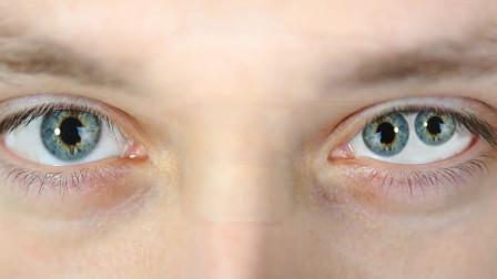 """拥有""""双瞳孔""""的人,和普通人有什么不同,真的有""""超能力""""吗?"""