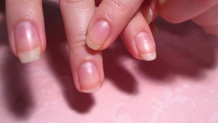 """手指甲根部的""""月牙白"""",真的能看出身体疾病吗?看完才知道"""