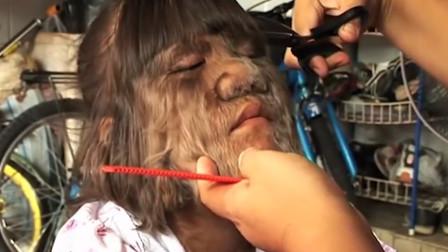 世界上体毛最多的女性,整张脸宛如大猩猩,剃光后让人惊艳