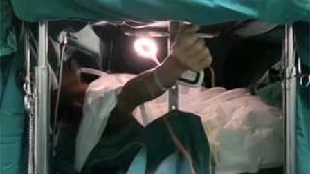 男子生吃蛇胆 20年后医生开颅揪出长达11厘米活虫