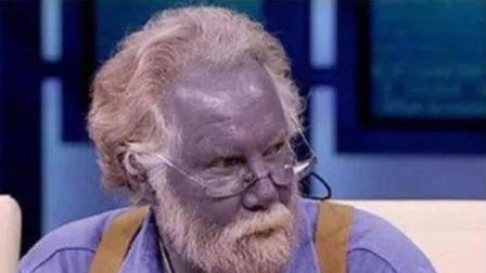"""世界上真有""""蓝种人""""存在,皮肤血液都是蓝色?简直是现实阿凡达!"""