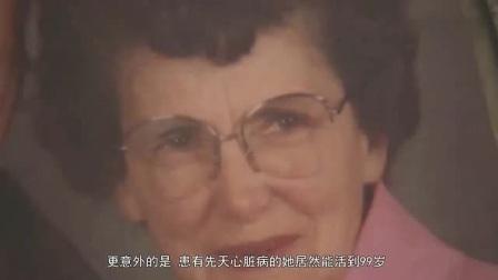 """她是天生的""""镜面人"""",被称医学界独角兽,天生心脏病却活到99岁"""