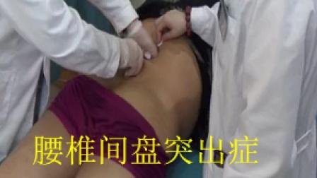 郭振存扳机点刃针治疗腰椎讲课视频1