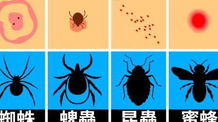 怎么区分是什么虫子咬的你?以及怎么处理?