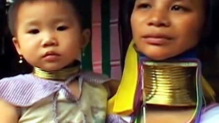 最悲催的长颈族,5岁开始戴着铜圈,拆了项圈就会死!