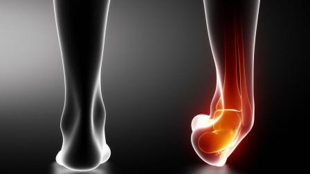 脚崴了该怎么办?教你简单的3个处理步骤,轻松解决崴脚后遗症