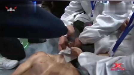 中国悍将一个高扫,嚓的一声对手头都歪了,围一圈医生给他止血