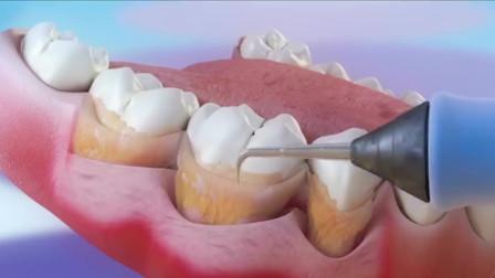 """牙齿是怎么被""""洗白""""的?3D动画还原全过程,看完你还敢去吗?"""