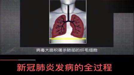 美国新冠肺炎患者发病的全过程,没有呼吸机非常痛苦