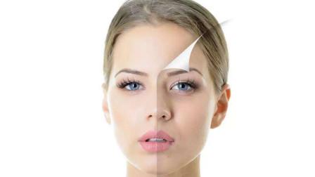 敏感性肌肤容易过敏、破损,呵护要特别注意这四点