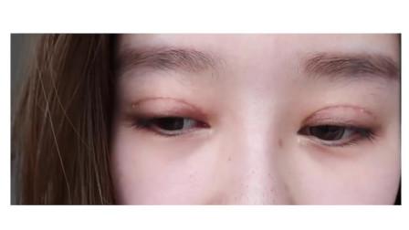 双眼皮恢复过程,很适合很好看,干货分享埋线与全切的区别