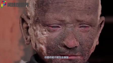 """印度男孩身患怪病,全身皮肤坚硬无比, 父母眼睁睁看他变成""""石头人"""""""