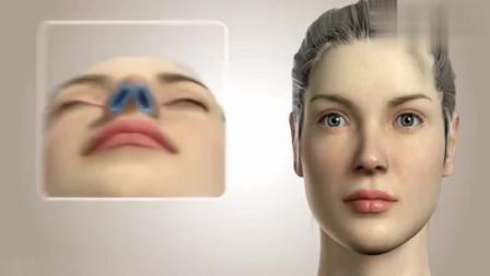 3D动画展示鼻子整形手术,看完后你还敢整形