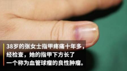 别不在意!女子指甲疼痛十年一查竟是肿瘤,医生:女性患者偏多