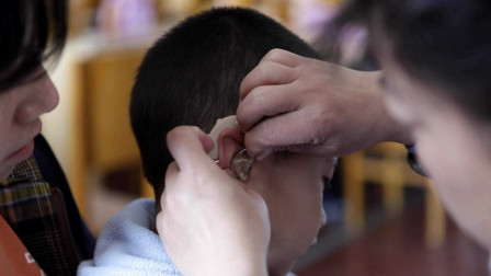 总觉得耳朵痒却掏不出东西,是进虫子了吗?医生:万万不能随便掏