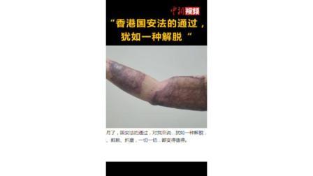遭暴徒强酸灼伤手臂的港警力挺香港国安法