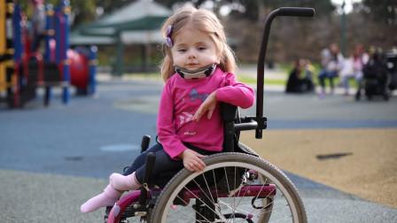 """她被称为""""玻璃女孩"""",一年骨折一百多次,天真微笑模样令人心疼"""