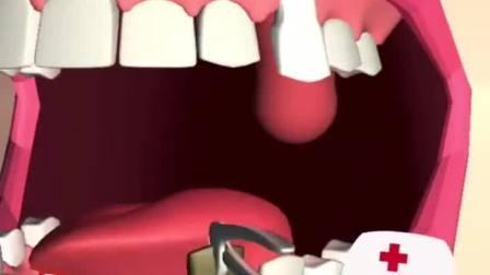 牙医也疯狂贝儿给光头强拔牙,叫声也太大了吧