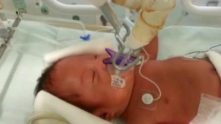 太奇妙了!23周早产儿从皱巴巴到胖嘟嘟,那小模样越长越可爱!