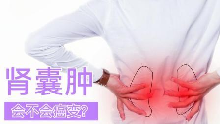 体检查出肾囊肿,如何知道是否会癌变?医生给您支招