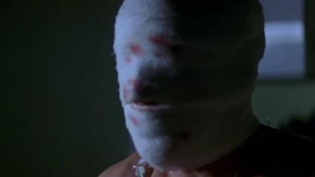 知道脸没了能有多痛么?直接把昏迷已久的植物人给弄醒了