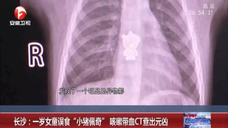 """长沙:一岁女童不停哭闹咳嗽带血,CT查出元凶,竟是误食""""小猪佩奇"""""""