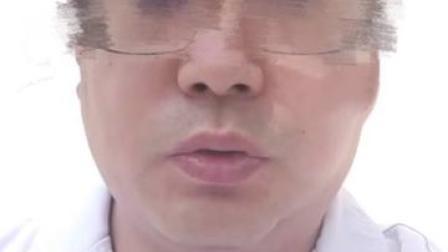 某三甲医院医生自曝收回扣50多万,院方:性格偏激,曾介入