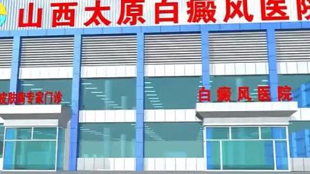 山西太原白癜风医院牛皮癣诊疗中心