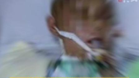 福建邵武一女子遭家暴头骨开裂昏迷两月,已!儿子:希望父亲受惩罚