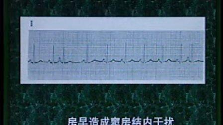 《诊断学基础 》第51讲- 共52讲-中国医科大学
