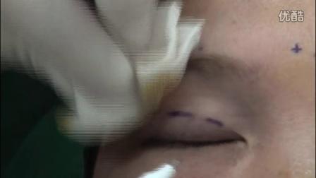 视频:埋线双眼皮手术操作过程