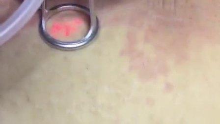 点阵激光去除疤痕和提拉紧致高清视频【科顿激光】