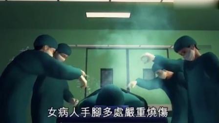 病人在手术中途放屁 造成手术室起火被严重烧伤 161104
