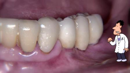 DETAX 牙科粘合剂 implantlink