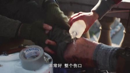 全境警戒 男子腿部受伤 自行急救火烧伤口