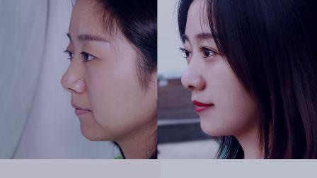成都双眼皮分享:肿泡眼单眼皮去皮去脂全切术后2月恢复日记 温婉气质变身韩剧女主