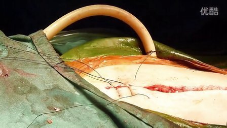 Simple interrupted suture
