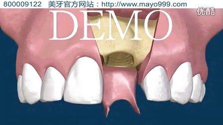 湖南长沙市做一颗种植牙要多少钱