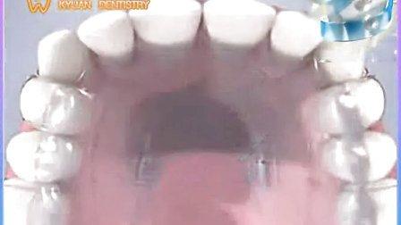 矫正牙齿价格表 5ooo.OO