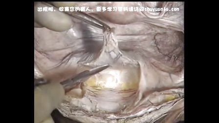 女性盆腔脏器解剖